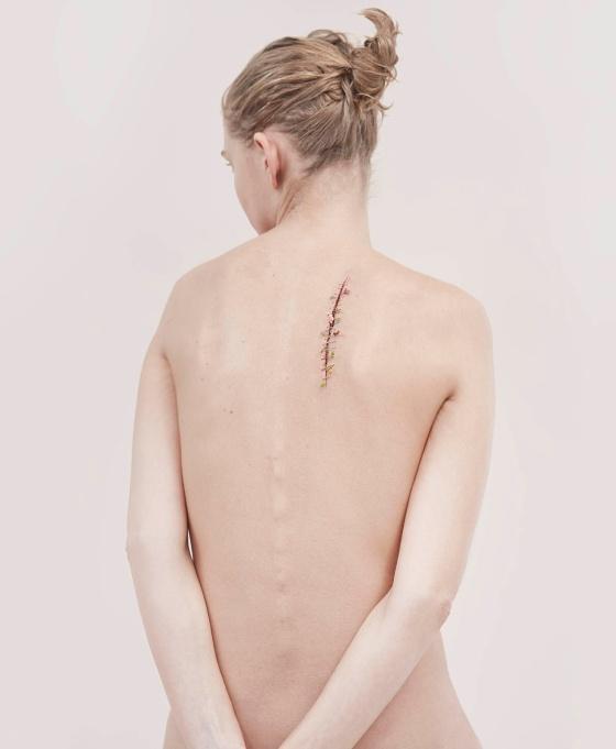 2017-jan-8-an-le-scar-01